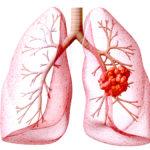喫煙者は必見!肺がんの原因と治療法にはどのようなものがある?