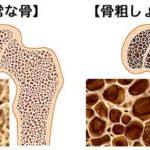 骨粗鬆症の原因とは…なぜ骨がスカスカに?薬が原因のケースも解説