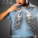 知っておきたい!肺がんと職業の関係について!